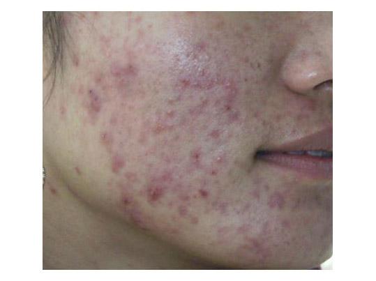 去青春痘最好的方法 脸上长痘痘是什么原因