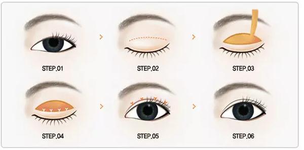 【美立资讯】双眼皮凭什么就比单眼皮好看?376 作者: 来源: 发布时间:2018-11-7 15:46