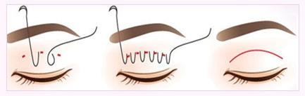 【美立资讯】双眼皮凭什么就比单眼皮好看?655 作者: 来源: 发布时间:2018-11-7 15:46