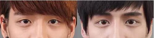 【美立资讯】双眼皮凭什么就比单眼皮好看?687 作者: 来源: 发布时间:2018-11-7 15:46