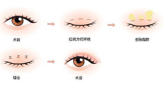 【美立资讯】双眼皮凭什么就比单眼皮好看?996 作者: 来源: 发布时间:2018-11-7 15:46