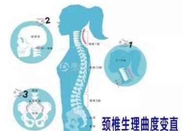 人体生理弯曲_人体脊柱生理弯曲度是适应直立功能的结果.