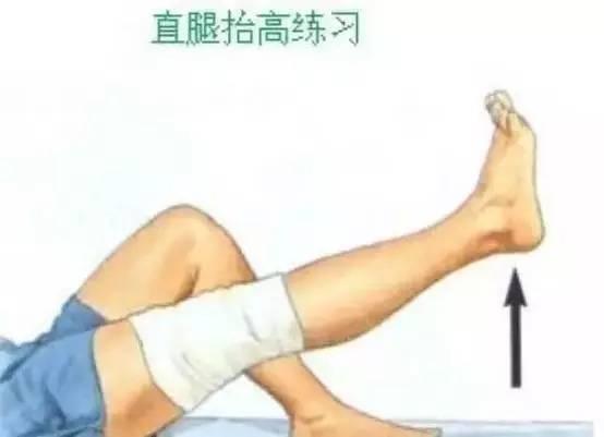 膝关节之半月板损伤