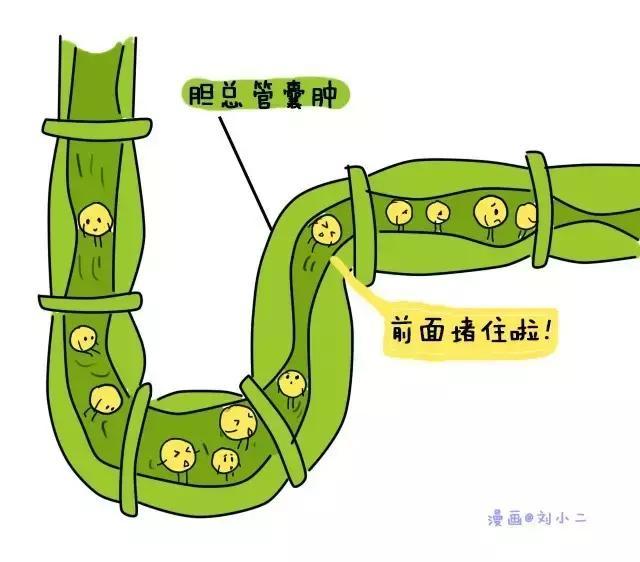性特级黄录像片_胆道闭锁等原因,导致胆红素排泄系统被阻塞,出现阻塞性黄疸.