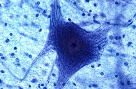 少突胶质细胞诱导als中的运动神经元死亡