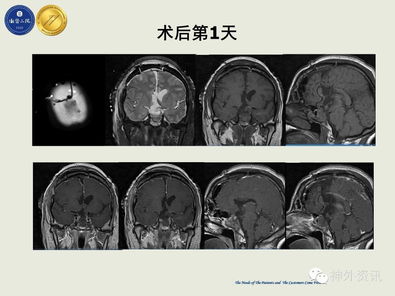 手术视频 浙二神外周刊 第63期 张建民教授 经纵裂 胼胝体 三脑室入路切除复发性垂体巨腺瘤