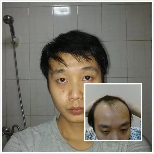 发际线高的男生适合什么发型?图片