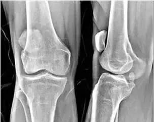 """有的人膝盖损伤,竟是因为""""高位髌骨"""""""