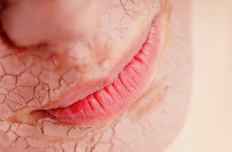 皮肤干燥脱皮怎么办 激素脸激素皮炎老是干燥脱皮结痂发红有什么办法修复