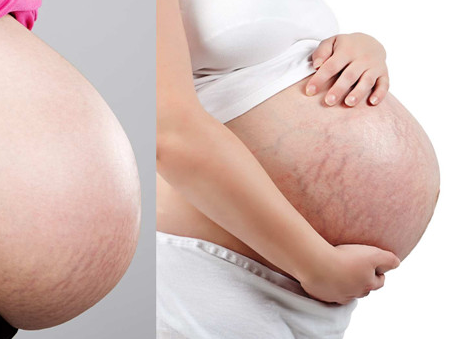 孕期做这些可以避免妊娠纹?