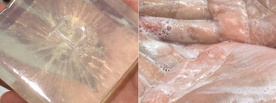 封闭性粉刺怎么去除 封闭性粉刺如何去除小妙招