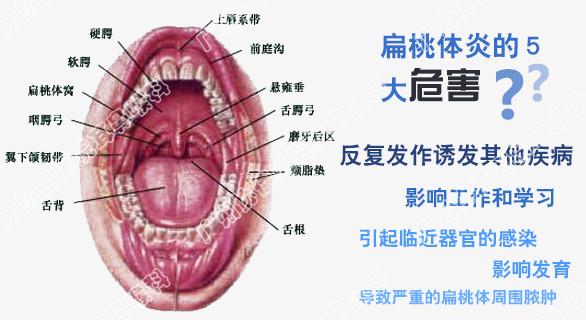 急性扁桃体炎的症状及防治