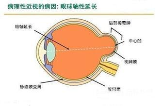 眼球突出,警惕病理性高度近视