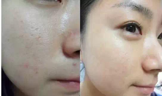 水光针后脸部过敏