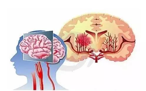 推荐阅读脑血管崩溃前有10个信号,出现3个就要警惕,别等半身不遂才看到! - 云淡风清 - 随心z.y的博客