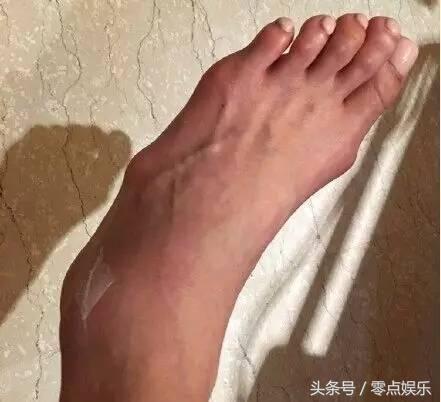 脚扭伤图片女真实图片