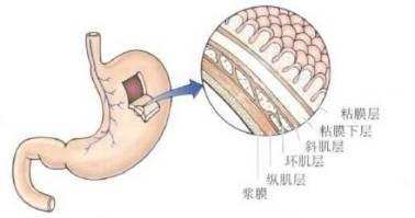 胃解剖结构图-早期胃癌难察觉,到底为什么