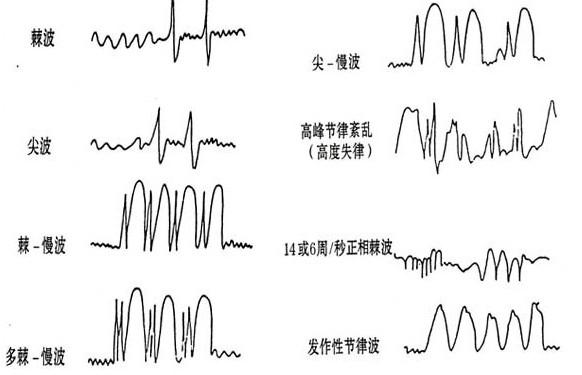脑电图有癫痫波一定是癫痫病吗?