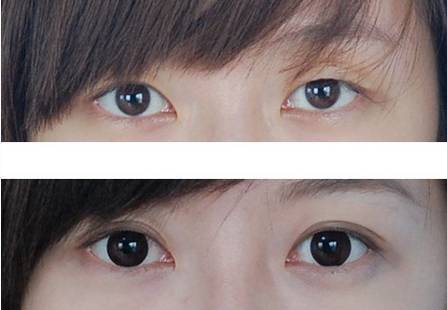 杭州双眼皮和开眼角一起做是种怎样的体验