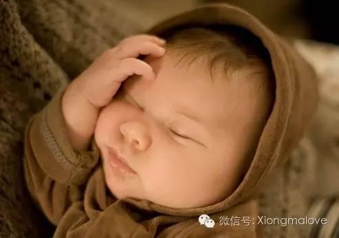 宝宝20天了黄疸图片_【新手父母】宝宝得了黄疸,别慌.