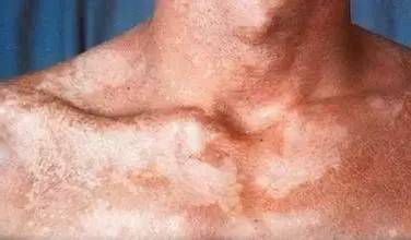 会传染的皮肤病,你知道多少