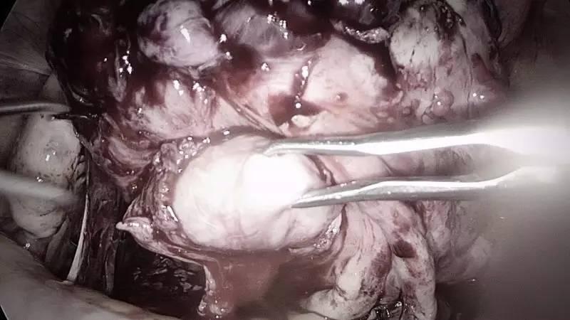 图4. 大大小小又找出5个肌瘤