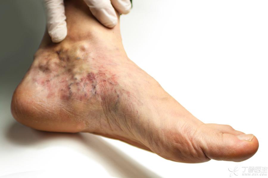热水泡脚舒服,但有三类人泡脚会伤身 - 风帆页页 - 风帆页页博客