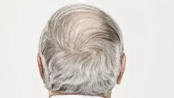 后脑勺白头发怎么办
