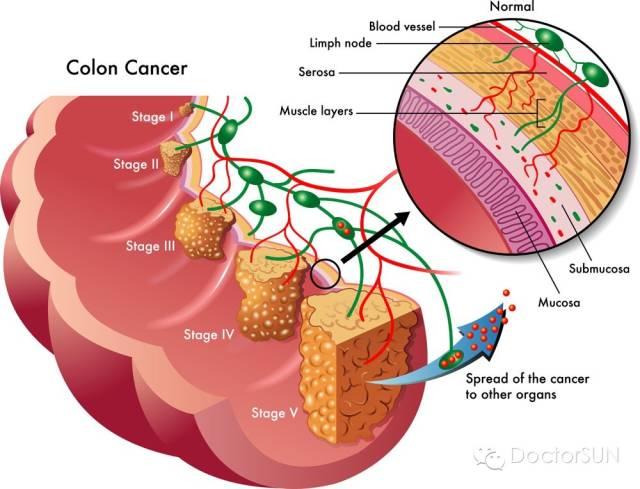 结肠肿瘤示意图