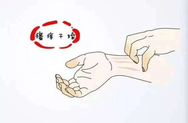 扰像周�_【健康】秋冬皮肤病反复\