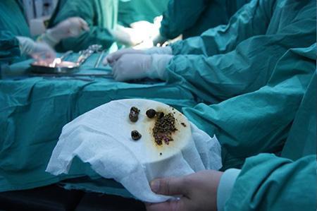 中药偏方治胆囊炎,慢工才能出良效