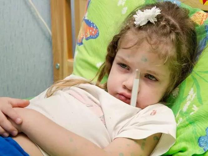 打过水痘疫苗还会被传染,高发期妈妈务必这样做