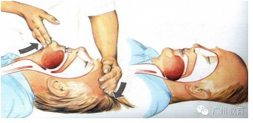 急救丨学点心肺复苏术,伸出援手施救助!
