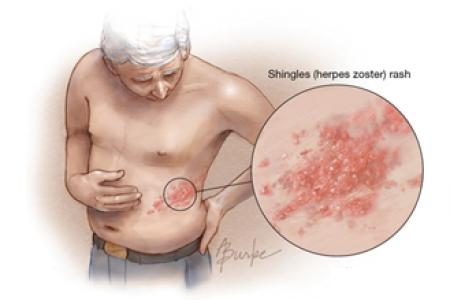蛇斑疮-常见的带状疱疹却为何不能及时发现?   带状疱疹是由水痘-带状疱疹病图片