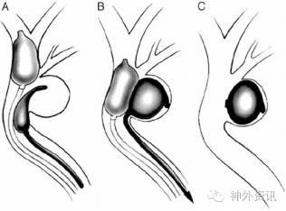 什么是瘺a��aX��i�_颈动脉海绵窦瘘的疾病简史