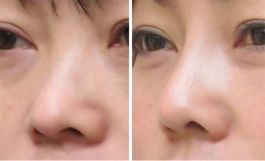 做个鼻子,   整体颜值上升几个档次呢~   这类鼻型的缺陷在于   鼻头部皮下脂肪和纤维组织厚   这主要是由鼻翼软骨增生   或鼻翼软骨角度过大及后缩造成的   美鼻方法: