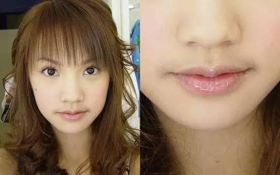 激光脱唇毛过程 ,唇部干净更自信_唇部脱毛的副作用危害_唇部脱毛会不会长出来