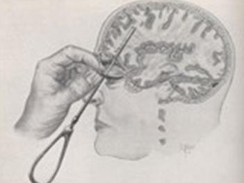 大脑结构示意图素描