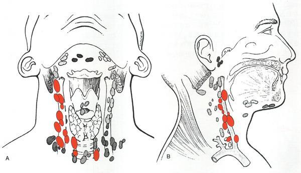 甲状腺超声报告怎么看?