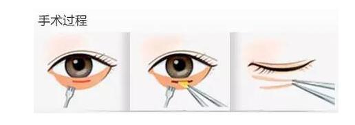 眼袋不可怕,可怕的是你一直以为那是卧蚕! - 马医生 - 瑞丽舍整形医生马君
