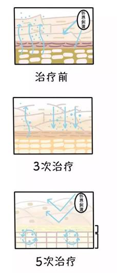 饥渴骚穴15p_解救肌肤冬季饥渴症