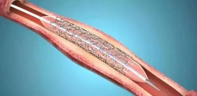 【术后】冠脉介入手术后的康复措施