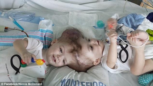 令人心醉:头部连体小兄弟,分离手术几周后拥抱谈心