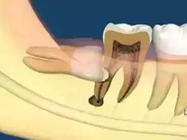 """为什么每个人都会长没有用的智齿?它有什么危害"""""""