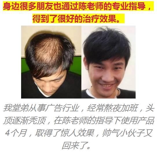 如何安全快速地让脱掉的头发重新长出来?图片