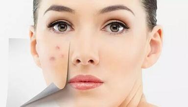脸上过敏脱皮了怎么办?脸上过敏为何会脱皮?