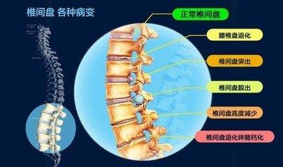 腰椎间盘突出为何会复发 ?