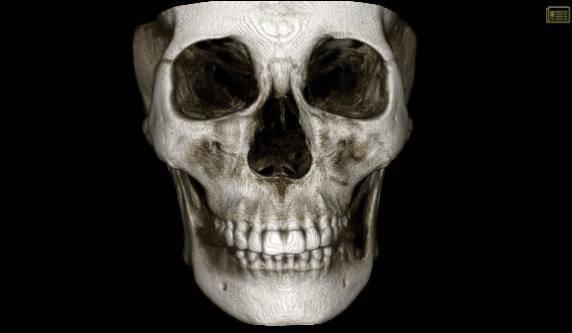 当临床工作中有了中科天悦口腔CT,会有什么不