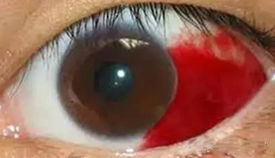 眼球出血_熬夜后眼睛居然出血了!