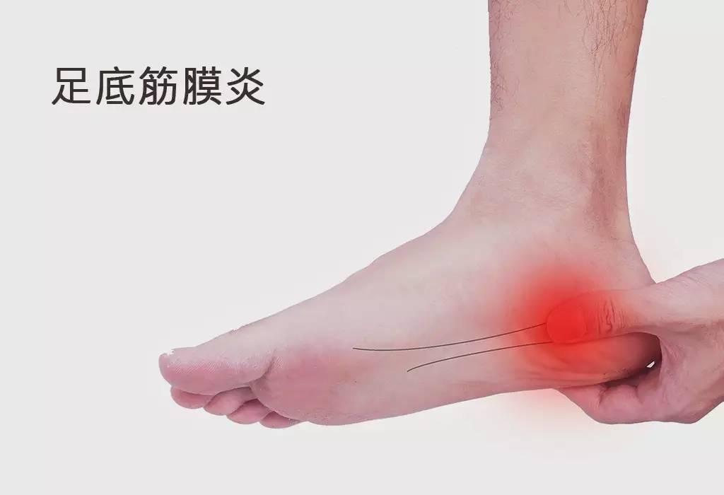 排球防护知识:足底筋膜炎